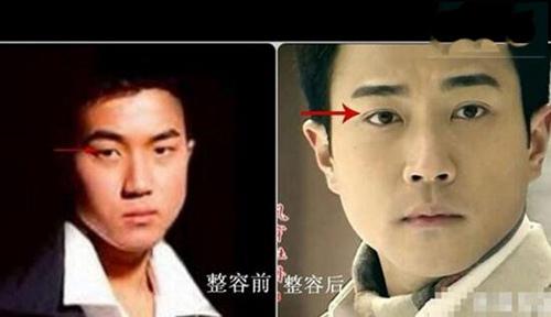 刘恺威整容前后照片对比 整了哪些部位_WWW.66152.COM