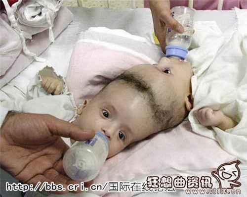 连体婴儿长大后的照片_WWW.66152.COM