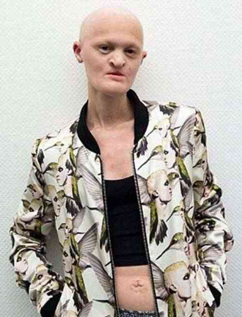世界上最丑女模特盘点_WWW.66152.COM
