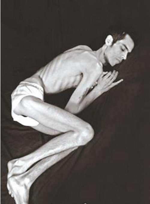 世界上最瘦的男人多瘦_WWW.66152.COM