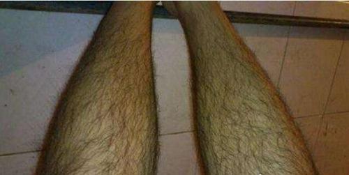 世界上最长的腿毛_WWW.66152.COM