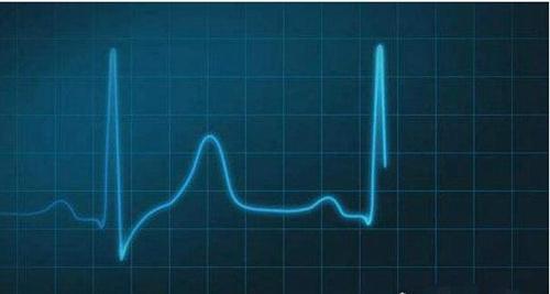 世界上心跳最慢的人_WWW.66152.COM