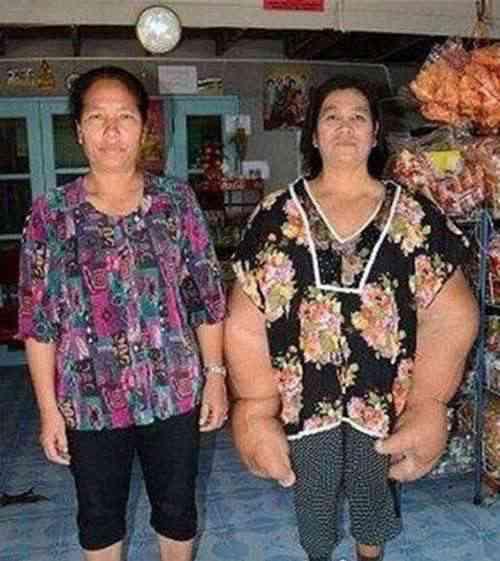 世界上最大最粗的手 手臂比腰还粗_WWW.66152.COM