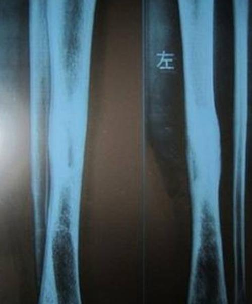 广州女孩患骨膜增生厚皮症_WWW.66152.COM