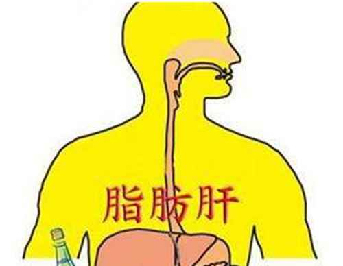脂肪肝最怕三种食物是什么?_WWW.66152.COM